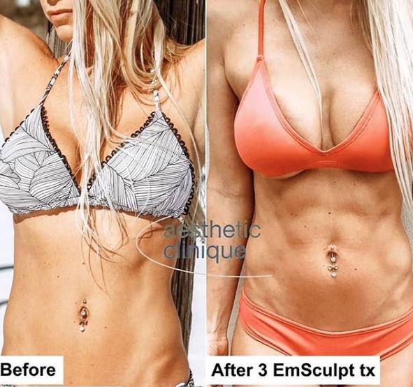 EMSCULPT, Before & After