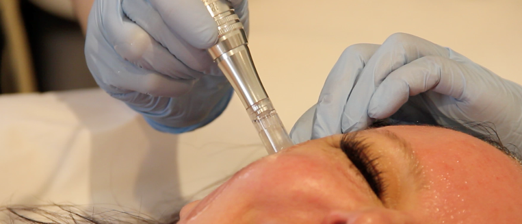 Microneedling Los Angeles, Dr. Michele Ware