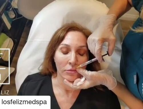 KYSSE by Restylane, Lip Injections Near Me, Lip Injections Los Angeles