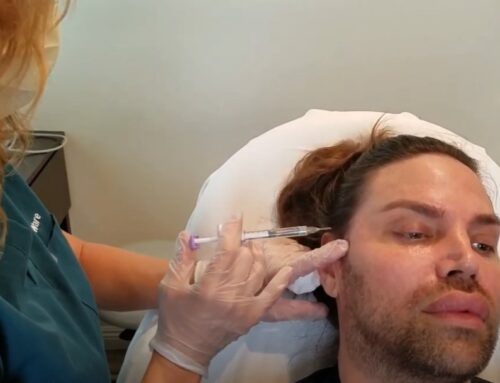 Filler Los Angeles, Injectables Los Angeles, Call Her 6