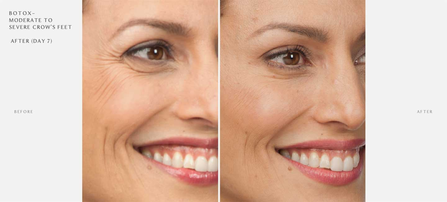 Botox Before and After Sample 1