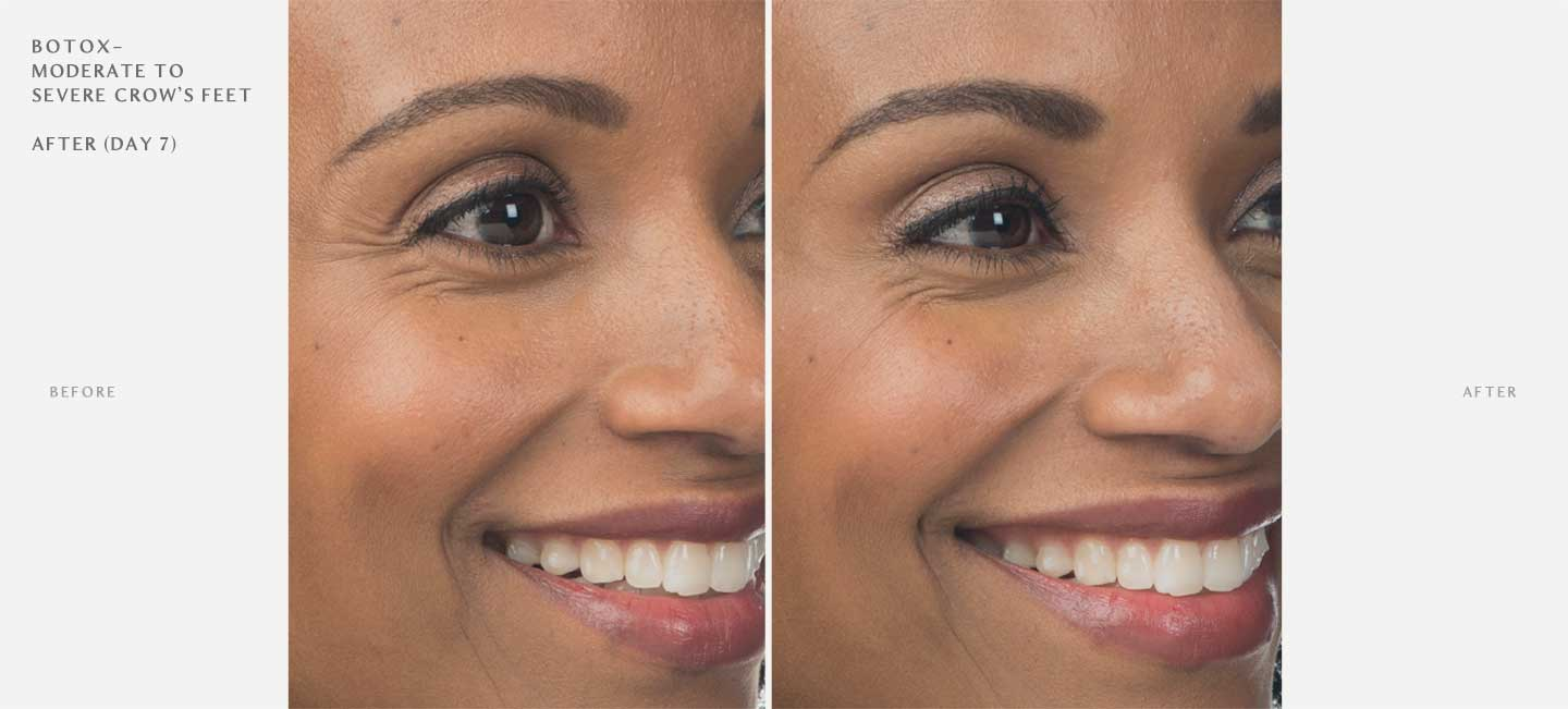 Botox Before and After Sample 3