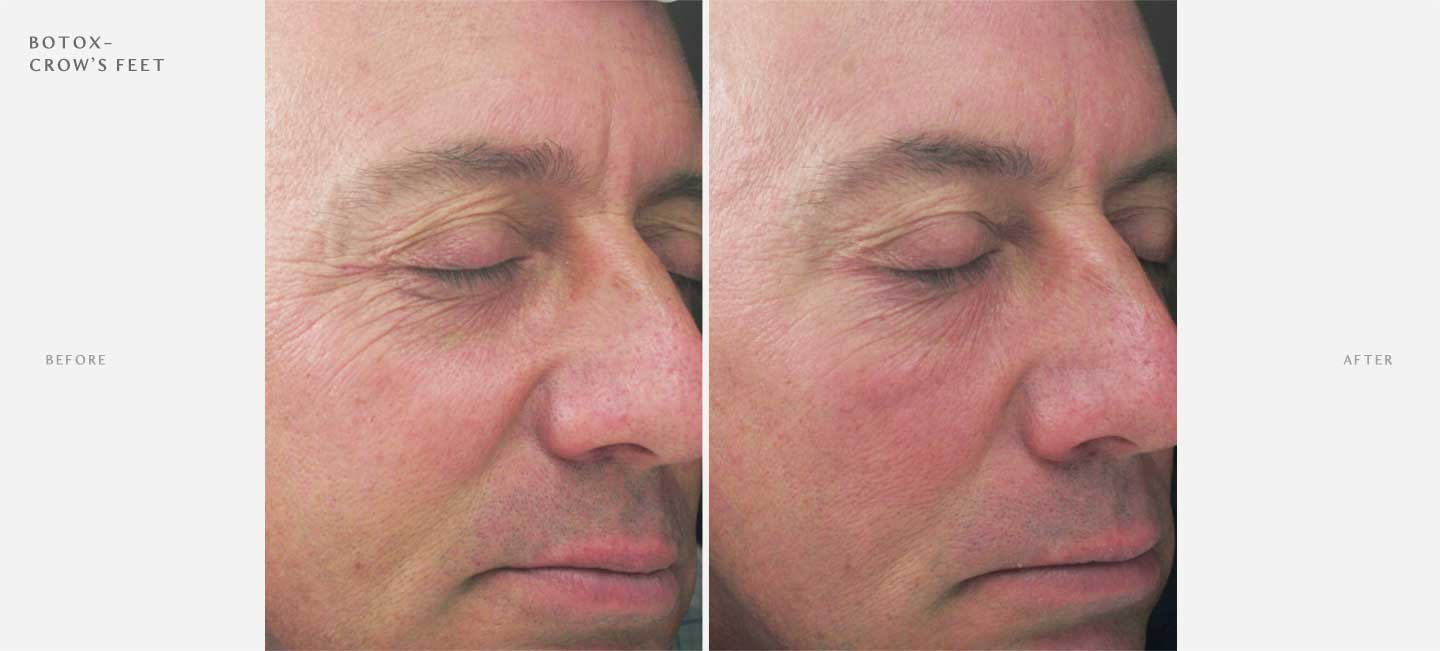 Botox Before and After Sample 4