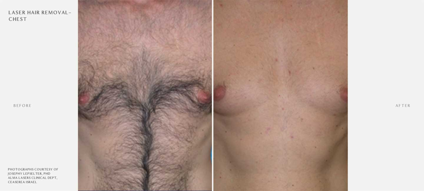 Laser Hair Removal Before and After Sample 1