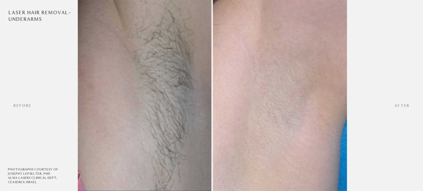 Laser Hair Removal Before and After Sample 2