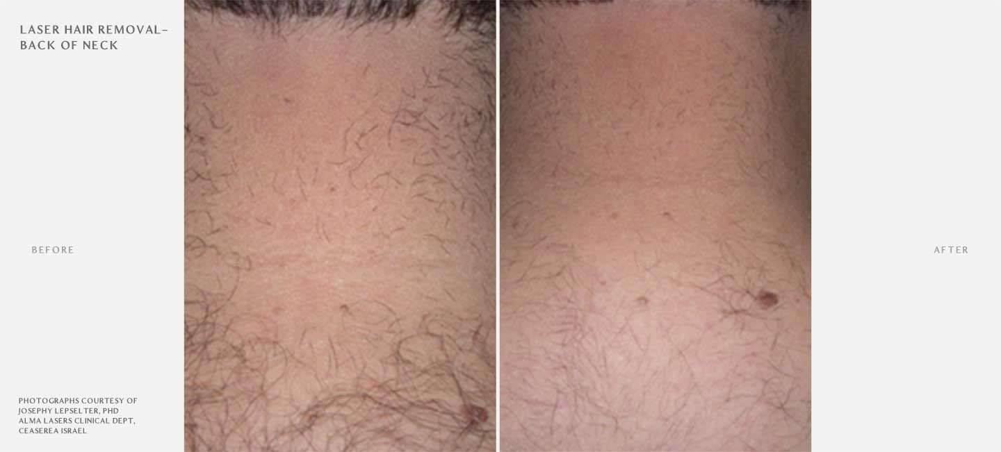 Laser Hair Removal Before and After Sample 3