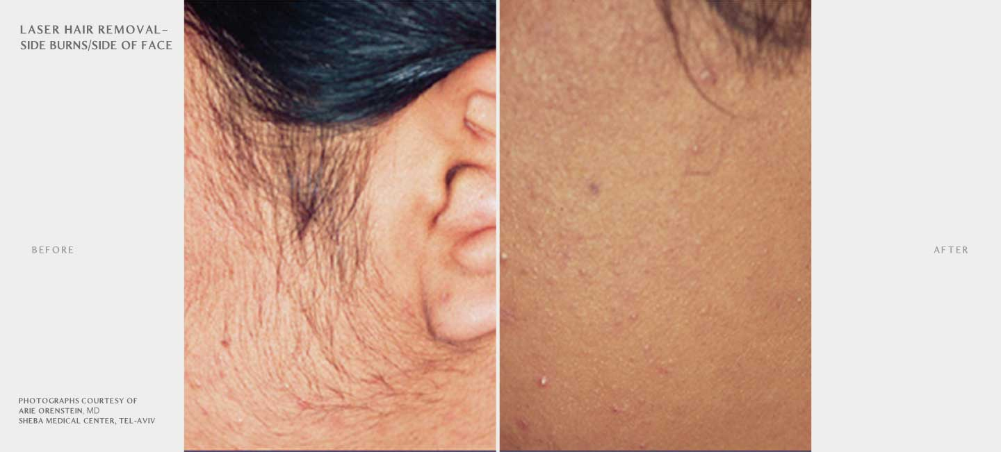 Laser Hair Removal Before and After Sample 4