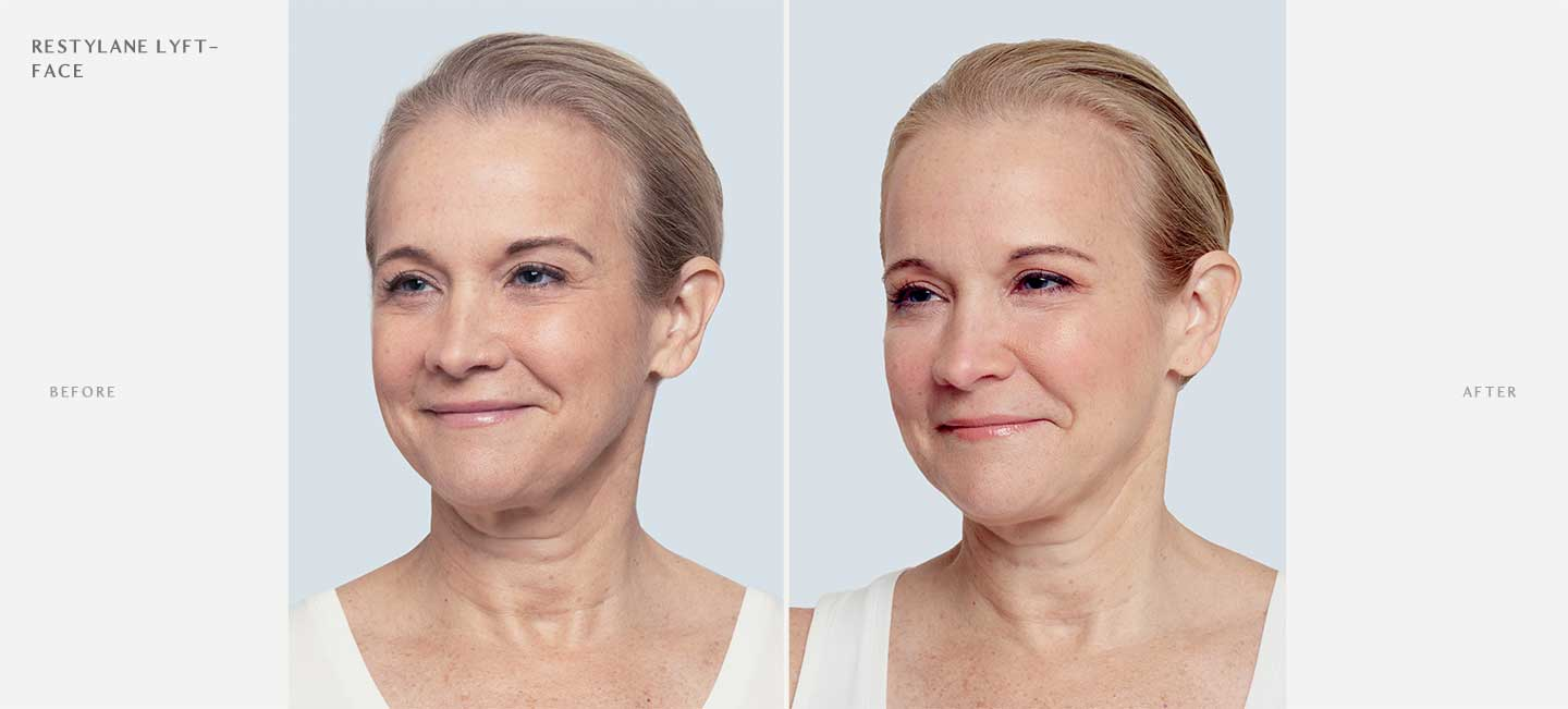 Restylane Lyft Before and After Sample 1