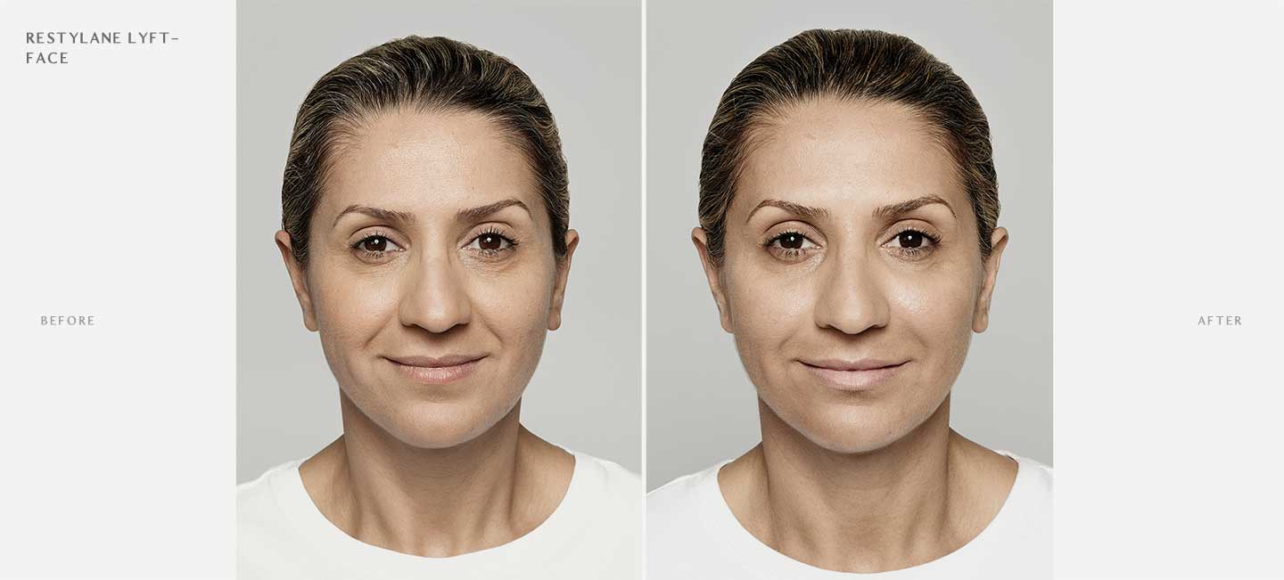 Restylane Lyft Before and After Sample 2