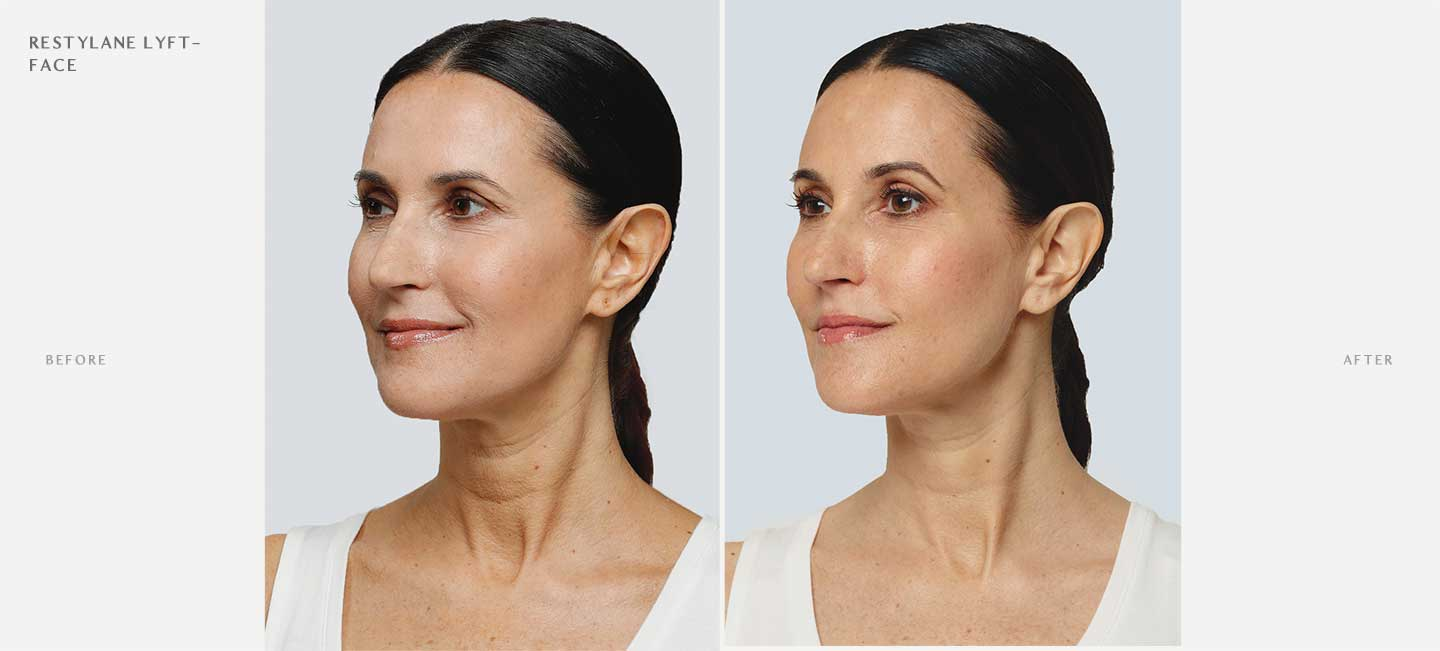 Restylane Lyft Before and After Sample 3
