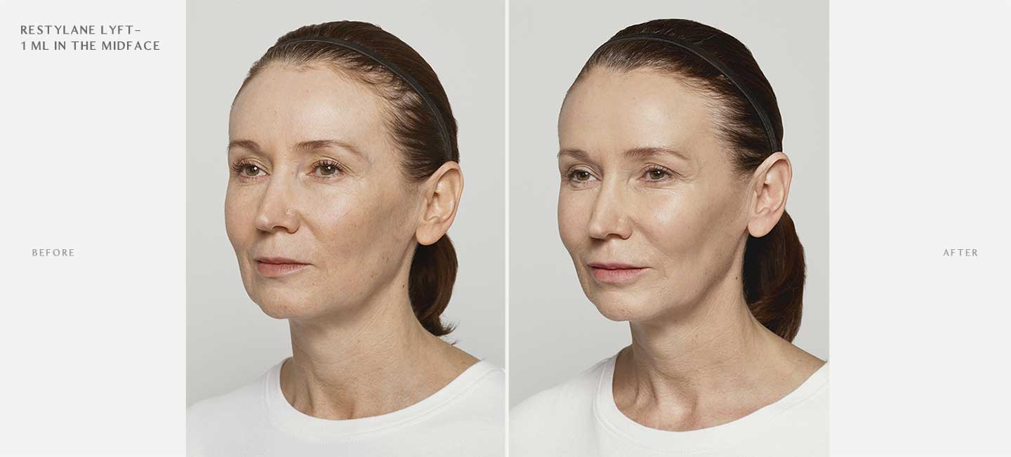 Restylane Lyft Before and After Sample 4
