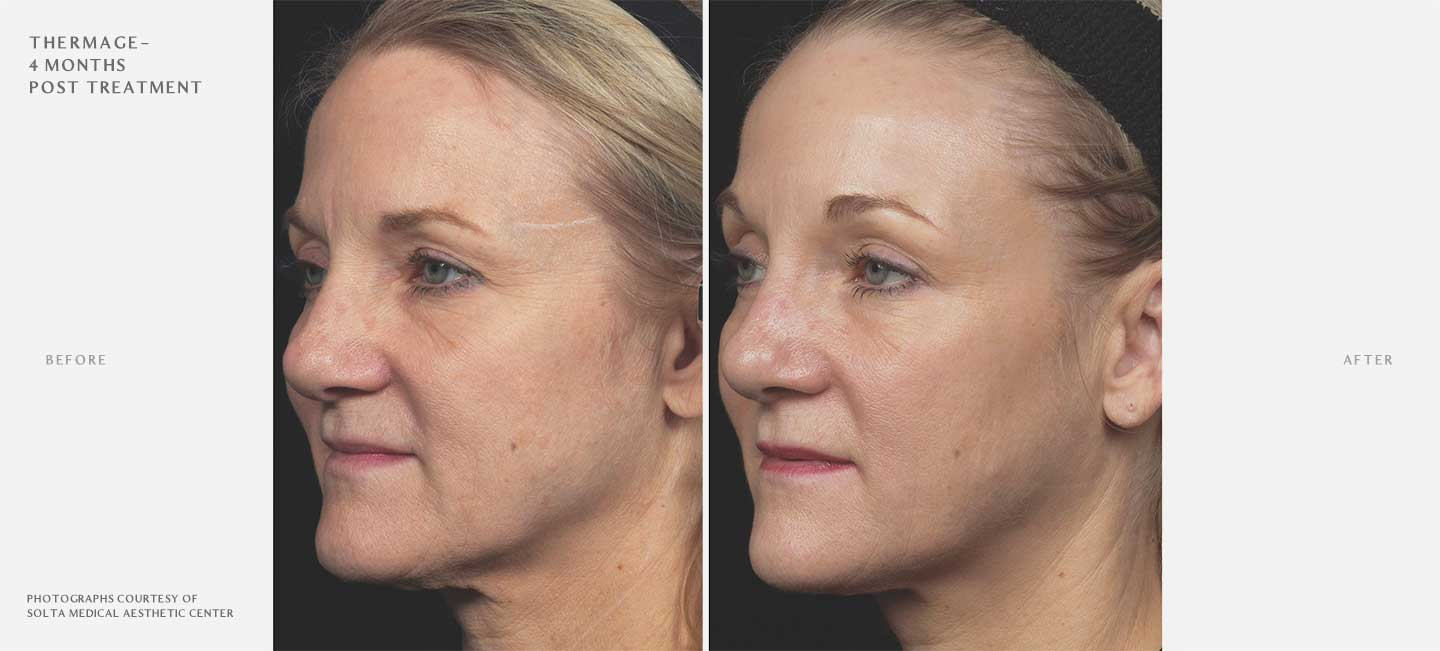 Thermage FLX Before and After Sample 1