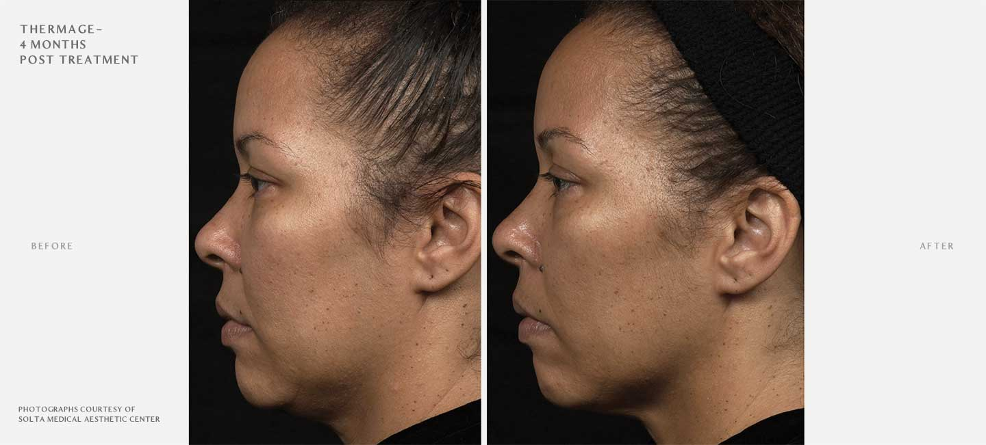 Thermage FLX Before and After Sample 3