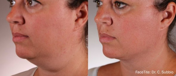 FaceTite Non-Surgical Face Lift Los Angeles Before and After Sample 1