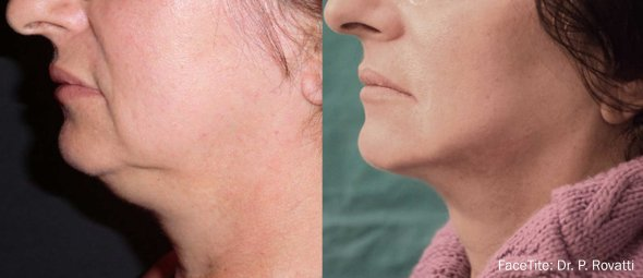 FaceTite Non-Surgical Face Lift Los Angeles Before and After Sample 2