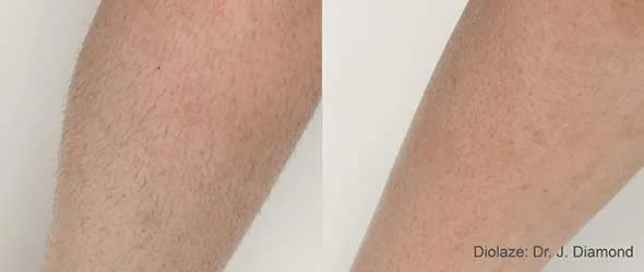 InMode Triton Hair Removal Los Angeles Before and After Sample 1