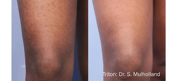 InMode Triton Hair Removal Los Angeles Before and After Sample 3
